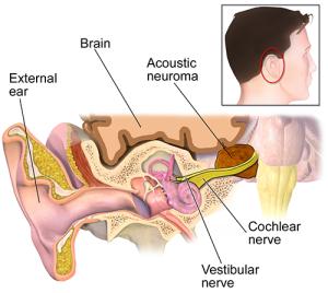 Радиохирургия невриномы слухового нерва в Израиле в клинике Ассута