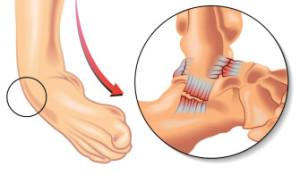 Лечение травм голеностопа в Израиле в центре Ассута