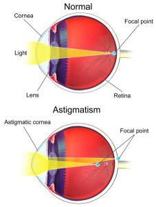 Лечение астигматизма в Израиле в Ассуте