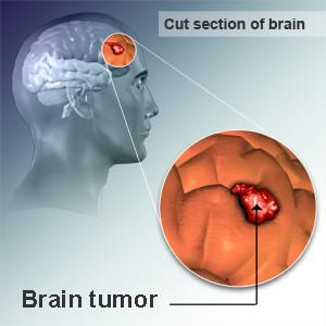 Лечение злокачественных опухолей мозга Израиле в центре Ассута