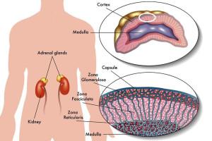 Лечение рака надпочечника в Израиле в центре Ассута