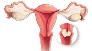 Лечение рака шейки матки в Израиле в Ассуте