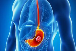 Лечение рака желудка в Израиле в Ассуте