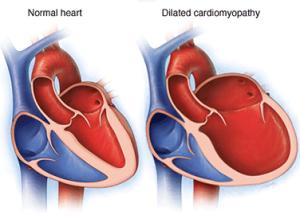 Лечение кардиомиопатии в Израиле в больнице Ассута