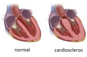 Лечение кардиосклероза в Израиле в Ассуте
