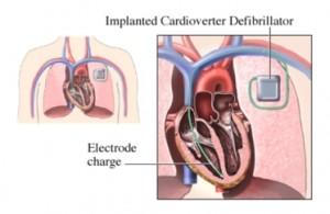 Имплантация кардиовертеров-дефибрилляторов в Израиле в центре Ассута