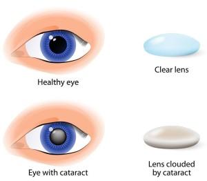 Лечение катаракты в Израиле в центре Ассута