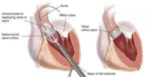 Имплантация клапана с помощью катетера в Израиле в Ассута Тель-Авив