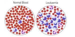 Лечение хронического лейкоза в Израиле в Ассуте