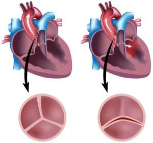 Лечение врожденных пороков сердца в Израиле