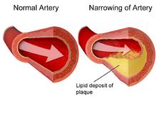 Лечение ишемической болезни сердца в Израиле в центре Ассута