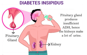 Лечение диабета несахарного в Израиле в центре Ассута