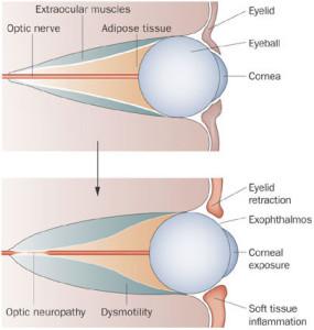 Лечение эндокринной орбитопатии в Израиле в Ассуте