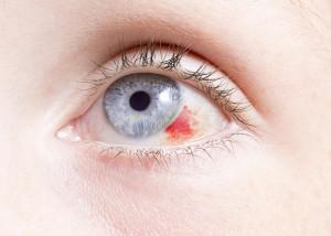 Лечение повреждений, ранения, травм глаза в Израиле в больнице Ассута