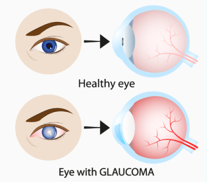 Лечение глаукомы в Израиле в больнице Ассута