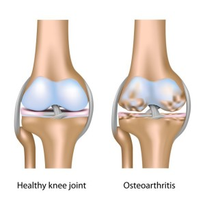 Лечение артроза (остеоартроза) коленного сустава в Израиле в Ассуте