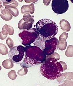 Лечение В-клеточного пролимфоцитарного лейкоза в Израиле в больнице Ассута