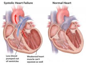 Лечение сердечной недостаточности в Израиле в Ассуте