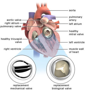 heart-valves-replacement