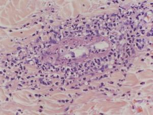 Лечение болезни Шенлейна-Геноха в Израиле в Ассуте