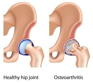 Лечение артроза (остеоартроза) тазобедренного сустава в Израиле в клинике Ассута