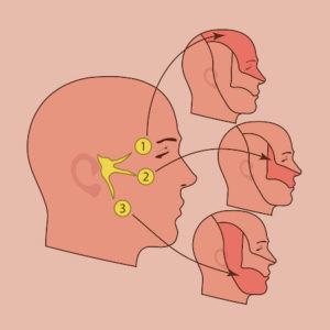 Лечение воспаления тройничного нерва в Израиле в Ассуте