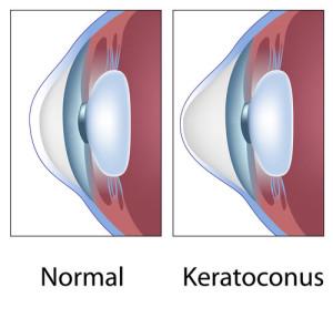 Лечение кератоконуса в Израиле в Ассуте