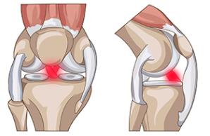 Лечение травм коленного сустава в Израиле в Ассуте