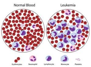 Лечение лейкемии (лейкоза) в Израиле в Ассуте