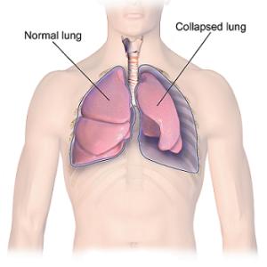 Лечение рака легких в Израиле в Ассуте