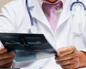 Лечение остеомиелосклероза в Израиле в клинике Ассута