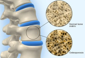 Лечение остеопороза в Израиле в больнице Ассута