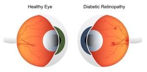 Лечение ретинопатии в Израиле в Ассуте