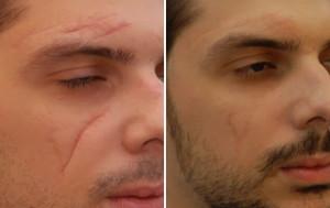 Коррекция рубцов и шрамов в Израиле в Ассуте