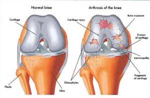 Лечение артроза (остеоартроза) плечевого сустава в Израиле в Ассуте