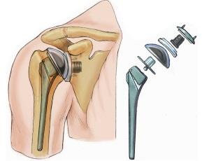 Эндопротезирование плечевого сустава в Израиле в центре Ассута