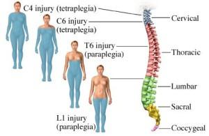 Лечение травматических повреждений и переломов позвоночника в Израиле в центре Ассута