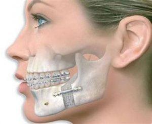 Стоматологическая хирургия в Израиле в Ассуте