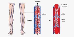 Лечение тромбоза и тромбофлебитов в Израиле в больнице Ассута