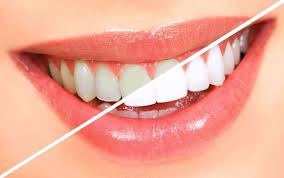 Отбеливание зубов в Израиле в больнице Ассута
