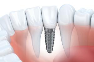 Имплантация зубов в Израиле в клинике Ассута