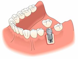 Протезирование зубов в Израиле в Ассуте
