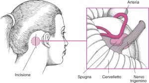 Микроваскулярная декомпрессия тройничного нерва в Израиле в Ассуте